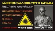 Лазерное удаление tattoo и перманентного tattooажа Николаев